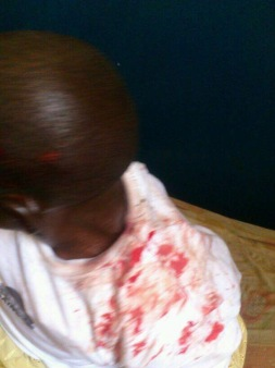 Seriously injured Gambia security forces in Banjul